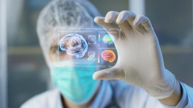 Ilustrasi otak manusia.