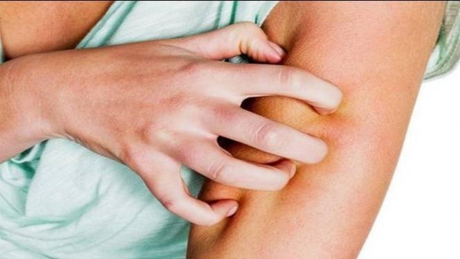 Diabetes menyebabkan timbulnya masalah kulit