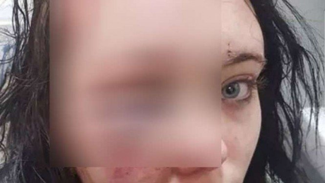 Korban kekerasan kekasih di Lancashire alami kerusakan otak permanen
