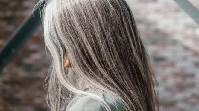 Rambut beruban di usia muda