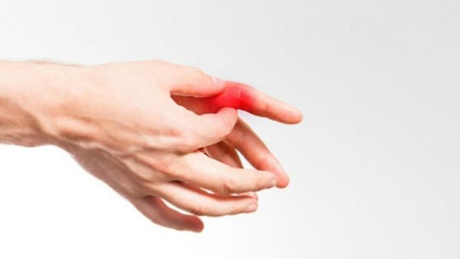 Ilustrasi asam urat di tangan.