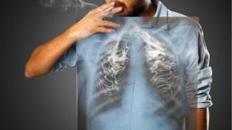 Ilustrasi kanker paru.