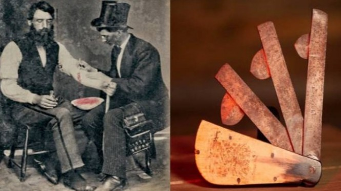 Cara pengobatan zaman kuno