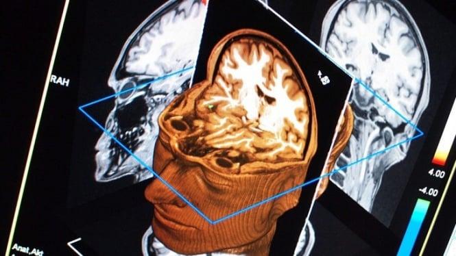 Ilustrasi kecerdasan otak manusia | Flickr, Ars Electronica