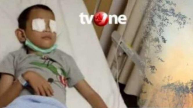 Al Fikri menderita iritasi mata parah akibat kabut asap karhutla.