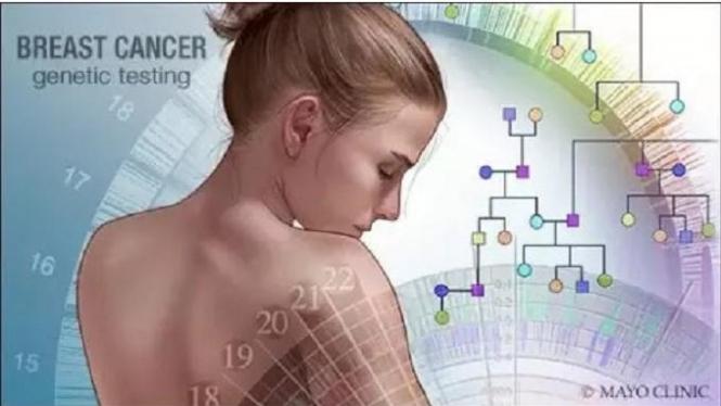 kanker, payudara, ampuh, obat