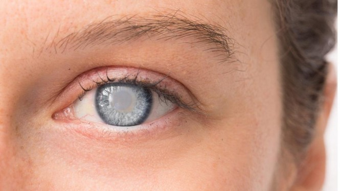 Penyakit Glaukoma