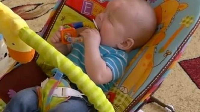 Bayi yang terlahir tanpa bola mata.