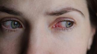 mata merah