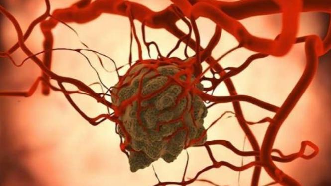 Ilustrasi sel kanker menyerap glukosa dari aliran darah