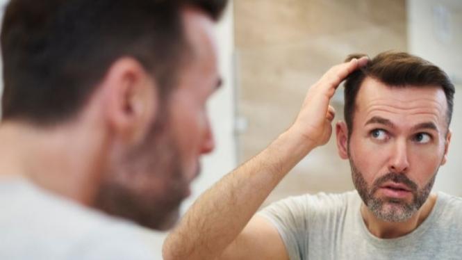 masalah rambut pria