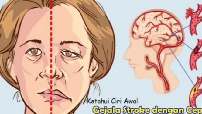ilustrasi serangan stroke