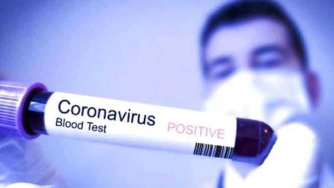 ilustrasi virus korona