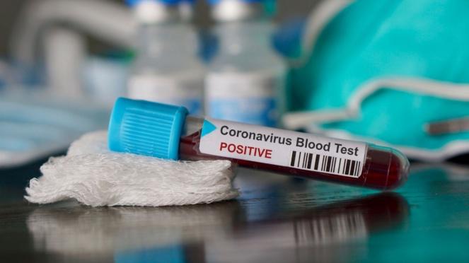 Ilustrasi hasil tes darah yang positif Virus Corona.