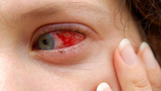 Ilustrasi mata merah.