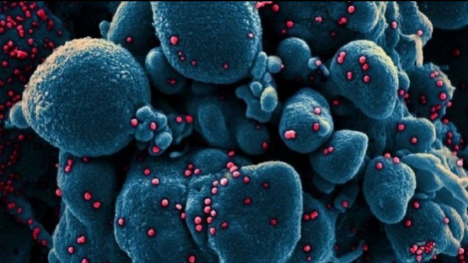Penampakan virus corona | Foto credit [NIAID Flickr]