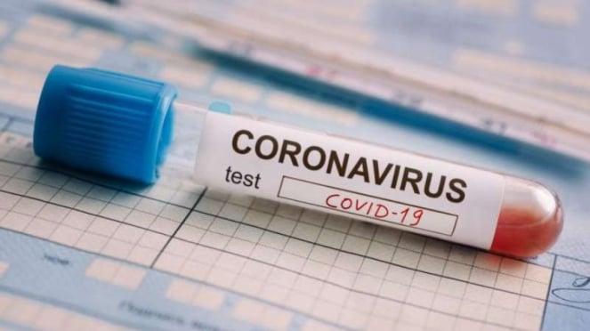 Sampel tes Virus Corona atau COVID-19