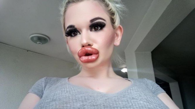 Andrea Ivanova, wanita dengan bibir terbesar di dunia