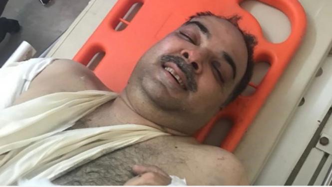 Korban selamat kecelakaan pesawat, Zafar Masud