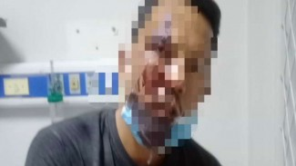 William Limbong, driver taksi online dianiaya polisi