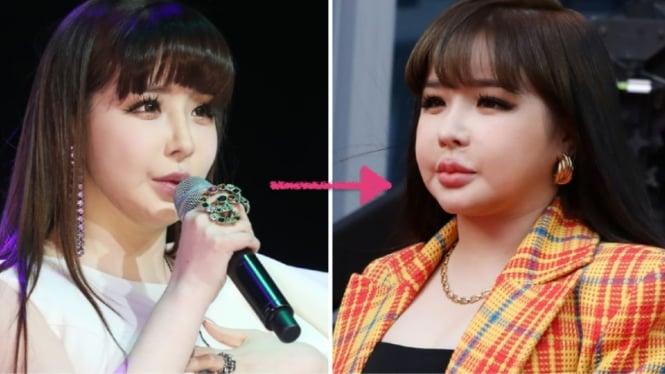 Park Bom eks 2NE1.