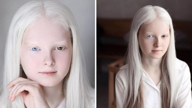 Amina Ependieva mengidap penyakit langka.