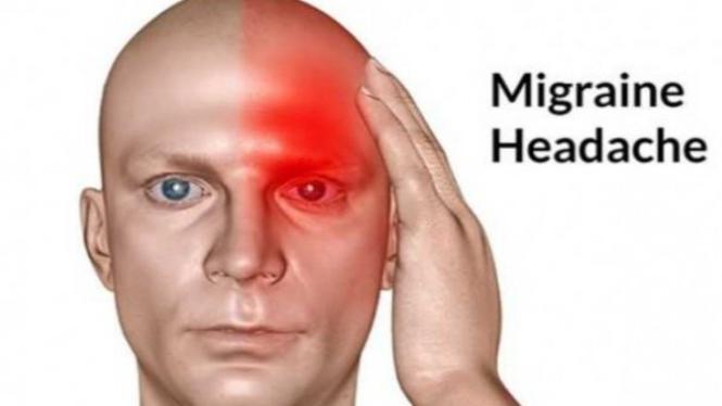 sakit kepala sebelah