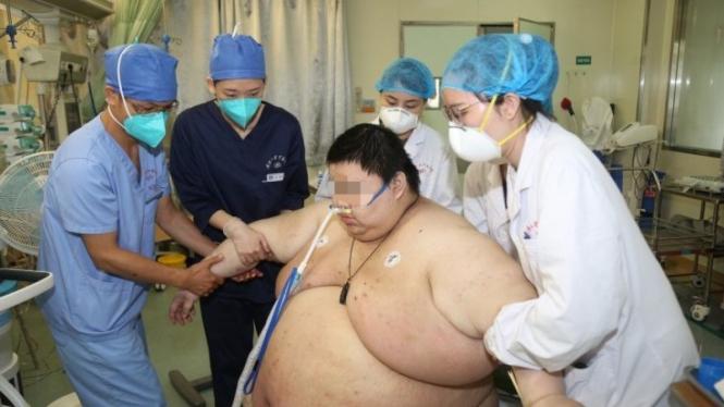Zhou, pria obesitas di Wuhan, China.