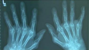 https://thumb.viva.co.id/media/frontend/thumbs3/2020/06/18/5eeafae6024da-kasus-penyakit-autoimun-meningkat-drastis_375_211.jpg