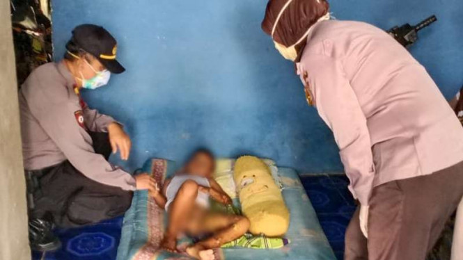 Main masak-masakan dengan hand sanitizer, bocah di Bekasi terbakar.