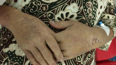 https://thumb.viva.co.id/media/frontend/thumbs3/2020/07/14/5f0c95a68655b-pekerja-indonesia-disiksa-di-arab-saudi-dalam-kondisi-kritis-dengan-luka-di-seluruh-tubuh-tangan-disetrika_375_211.jpg