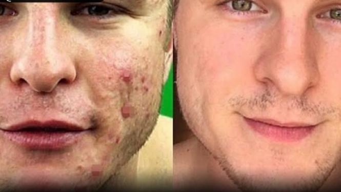 Tips Ampuh Bersihkan Wajah Dari Jerawat Dengan Khasiat Garam