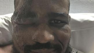 Petarung UFC, Corey Anderson