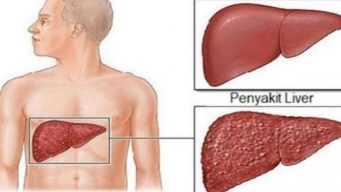 jenis makanan perusak liver atau hati