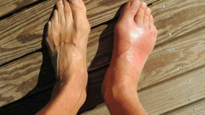 Ilustrasi asam urat di kaki.