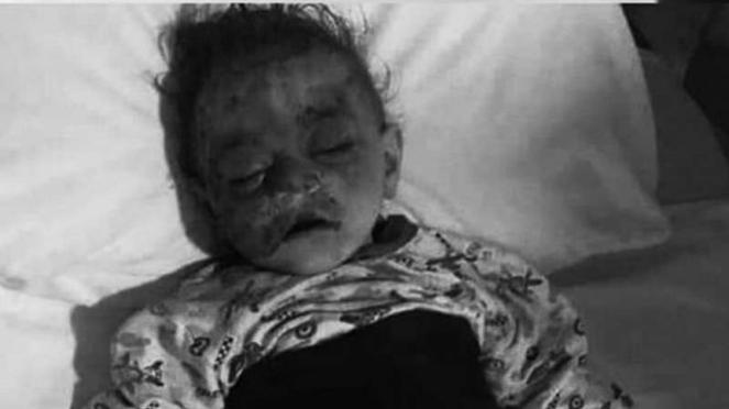 VIVA Militer: Seorang bayi Azerbaijan tewas terkena serangan roket Armenia