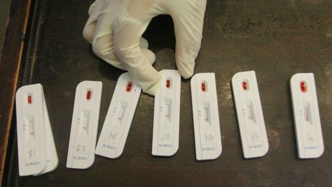Ilustrasi hasil rapid test