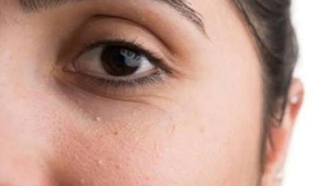 Cara menghilangkan bruntusan di wajah