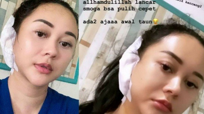 Kondisi Aura Kasih usai jalani operasi telinga