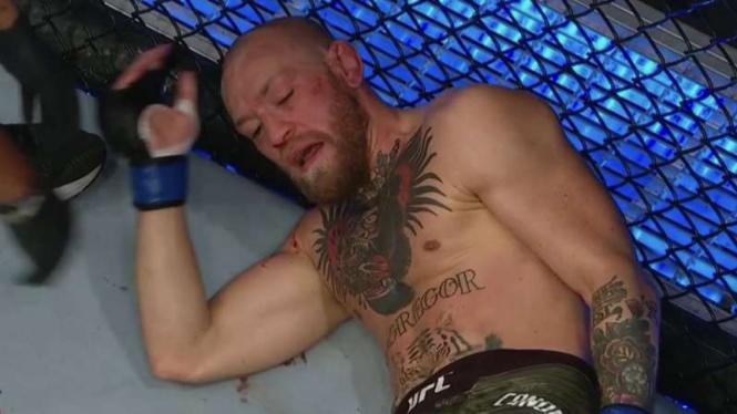 Penampakan McGregor usai kena hantam Poirier di UFC 257