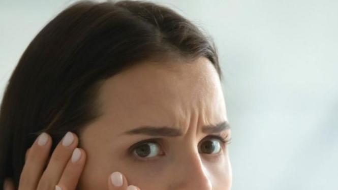 Jerawat di wajah | image : canva