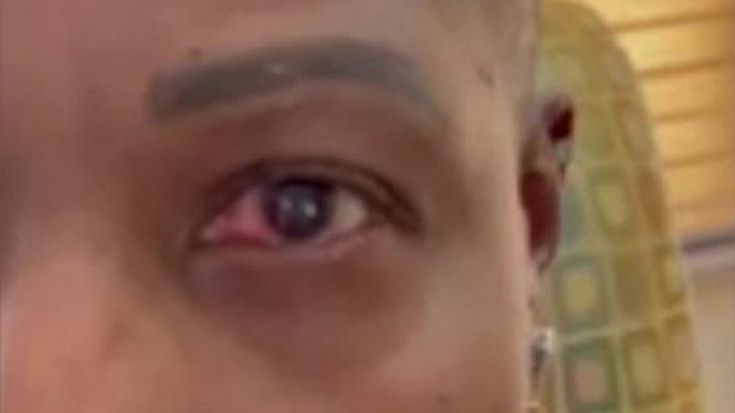 Mata Yacedrah Williams terlihat merah.