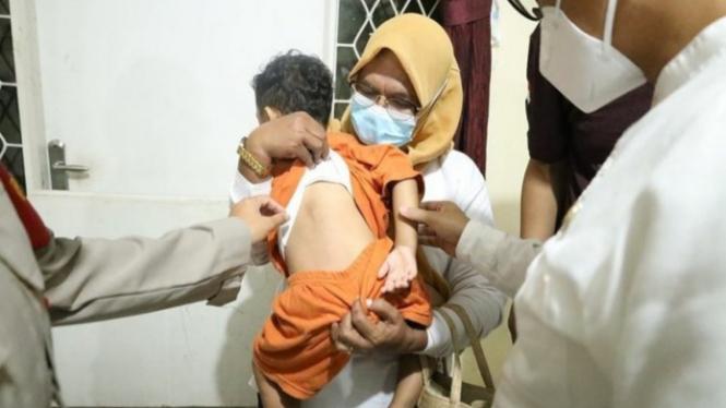 Bocah yang dianiaya Ibu Tiri di Pondok Aren alami banyak luka lebam.